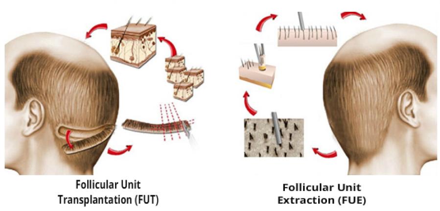 FUE vs FUR hair transplant